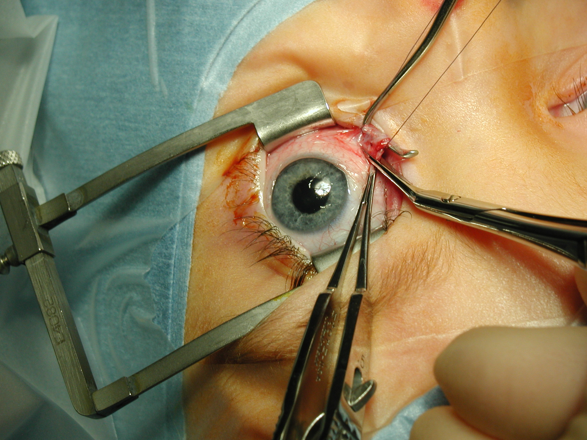 boli ale organului vederii