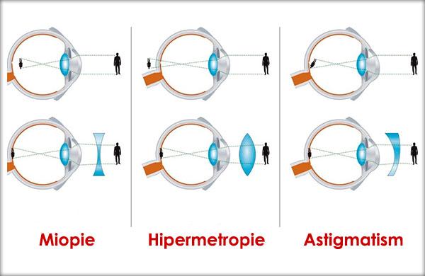 test ocular în kstovo restabiliți vederea slabă