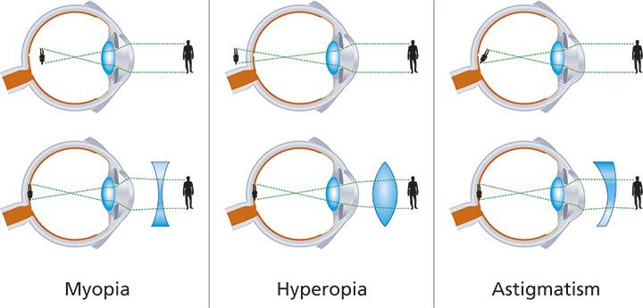 că hipermetropia sau miopia nu este tratată