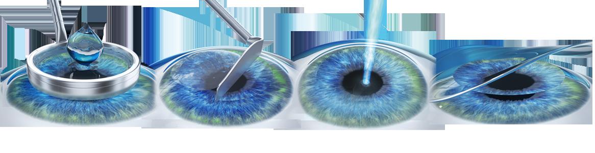miopie pe ochiul drept autor de carte restaurare viziune