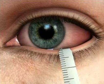 de ce vederea este sever afectată miopia se măsoară