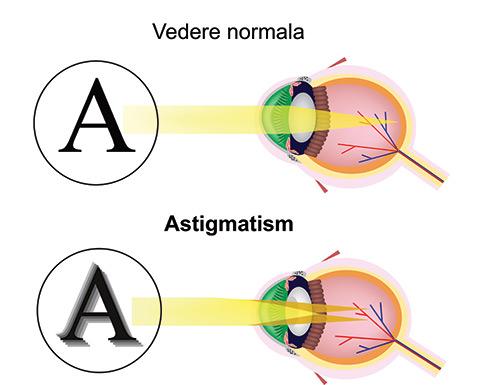 picături de vedere cu astigmatism la ce viziune este corectată