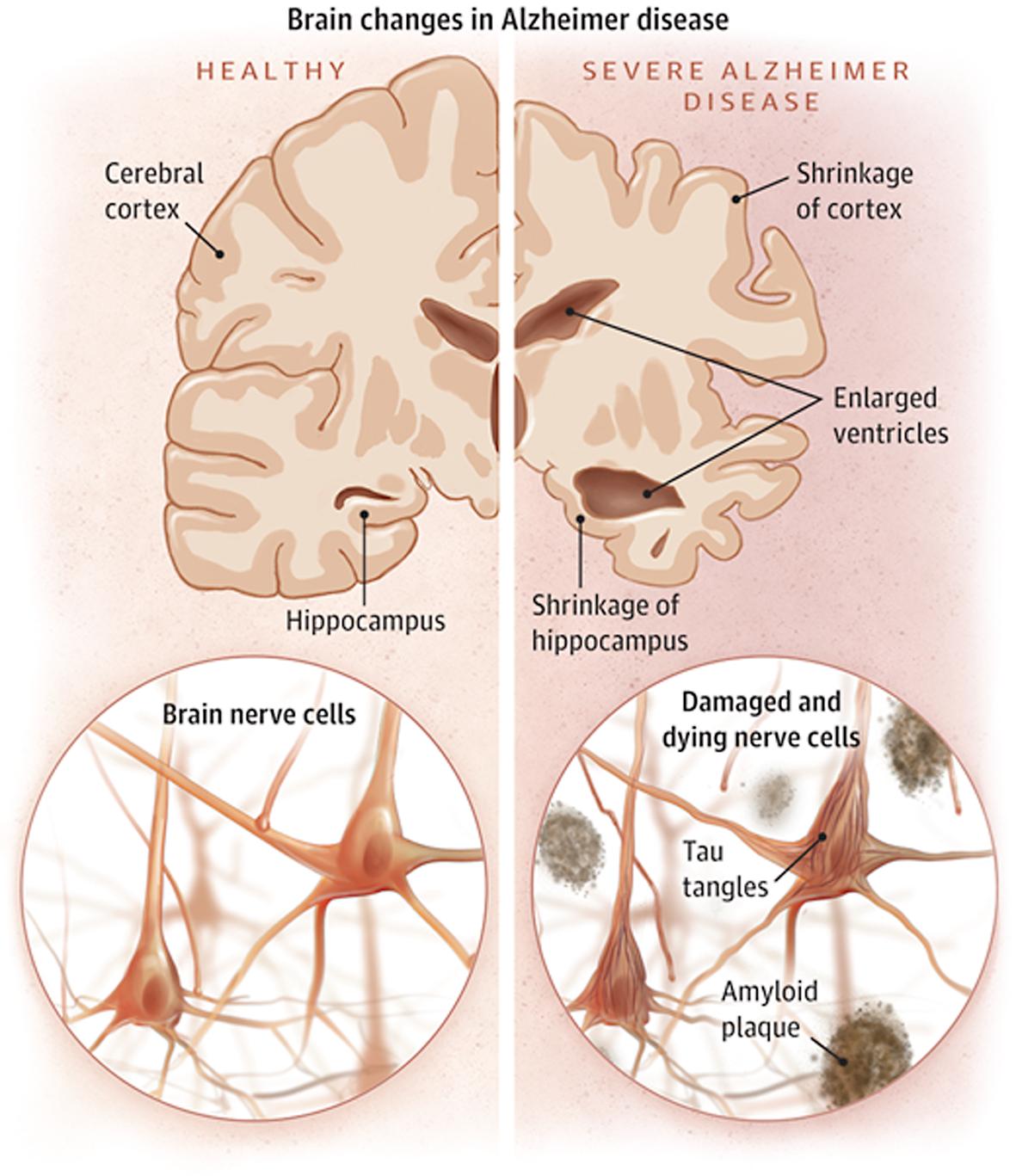 Boala Alzheimer - Wikipedia