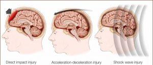 Comoţie cerebrală: simptome, cauze, tratament, prevenţie