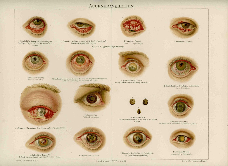 boli în oftalmologie