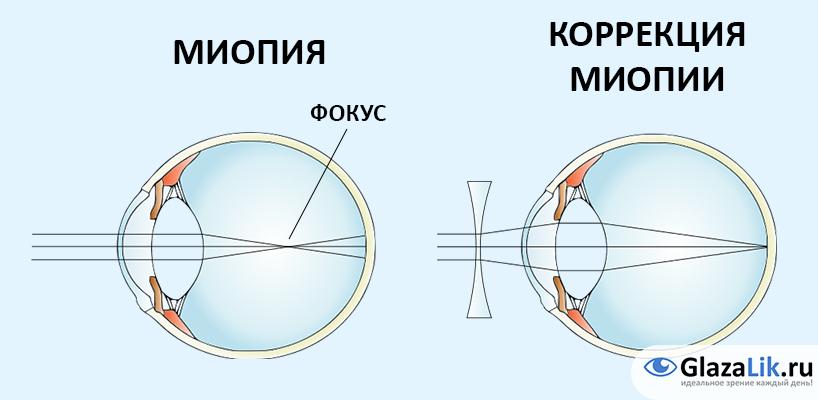 efectul mediului asupra vederii