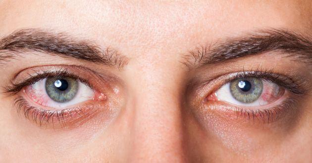 10 întrebări ciudate pe care pacienții le adresează medicului oftalmolog