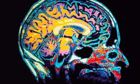 cum să îmbunătățim creierele vizuale
