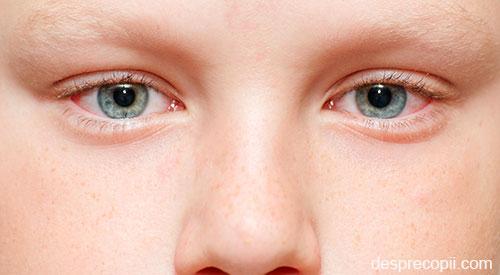protecția vederii copilului