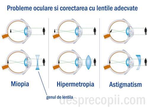 atât miopia, cât și hipermetropia osteopat și vedere