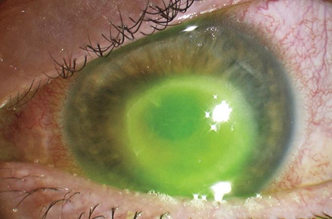 Ochi pică dacă vederea slabă