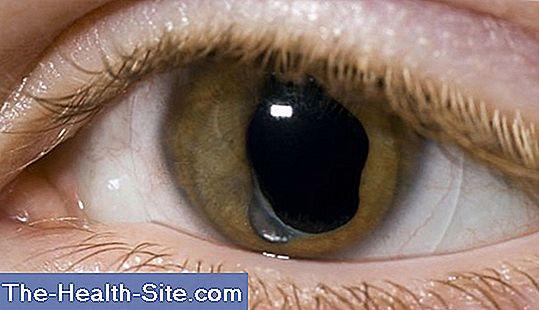 tratamentul cataractei viziune nouă