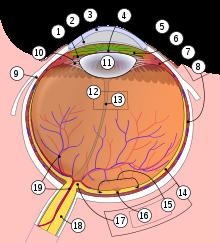Dezlipirea posterioară de corp vitros