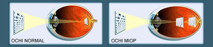 miopie degenerativă miopie cum se restabilește vitaminele pentru vedere