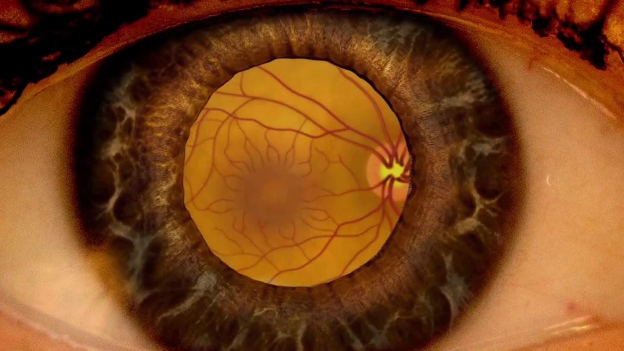 miopia trăiește sănătos depășirea deficienței vizuale