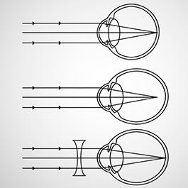 Miopia și soluțiile de corecție optică - 7-pitici.ro