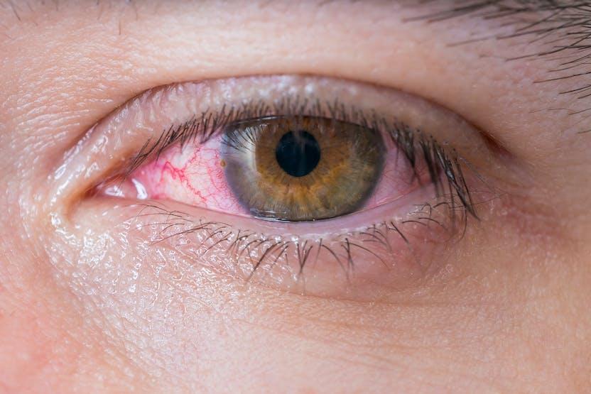 o scădere accentuată a vederii ochilor