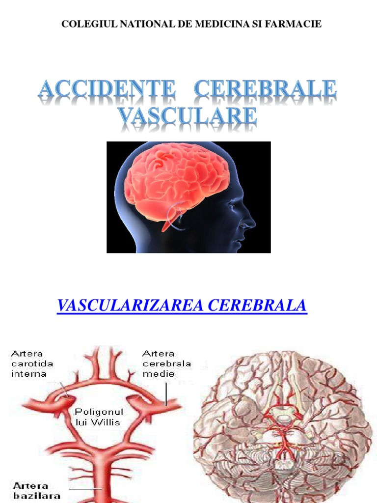 suspiciune de comotie cerebrală