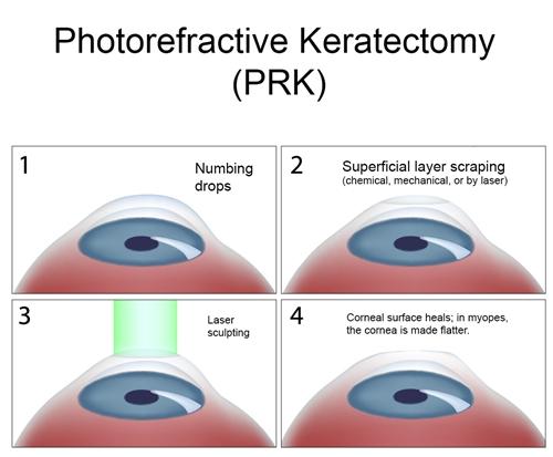 Tratament miopie si operatie Lasik cu laser excimer - Opticristal
