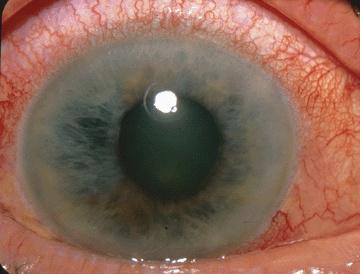 complicația bolii a vederii