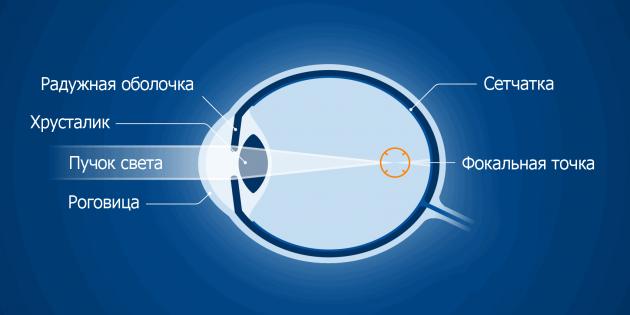 totul despre astigmatismul viziunii