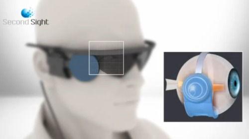 refacerea detașamentului retinian