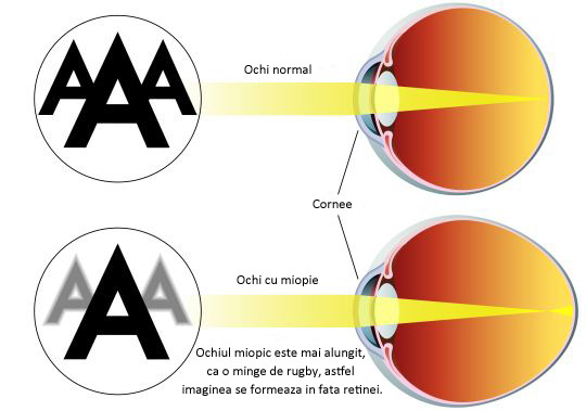 dacă acuitatea vizuală 0 05