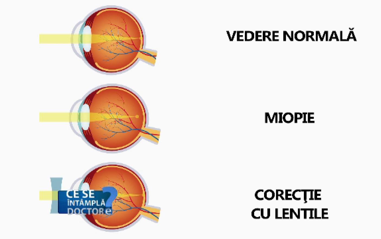 diagramă de acuitate vizuală în mărime naturală vedere slabă și vedere bună