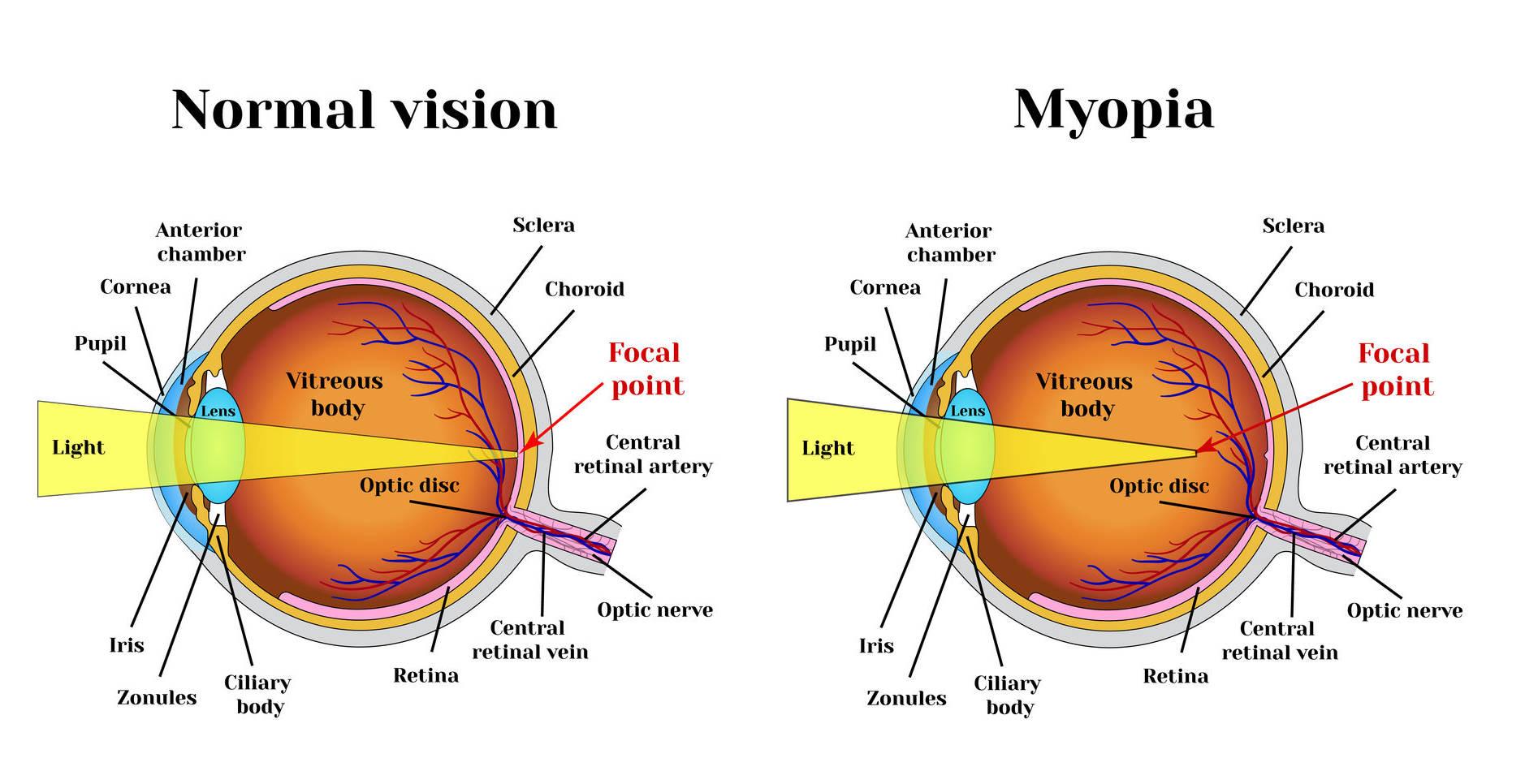 test de viziune online arahnoidită și vedere