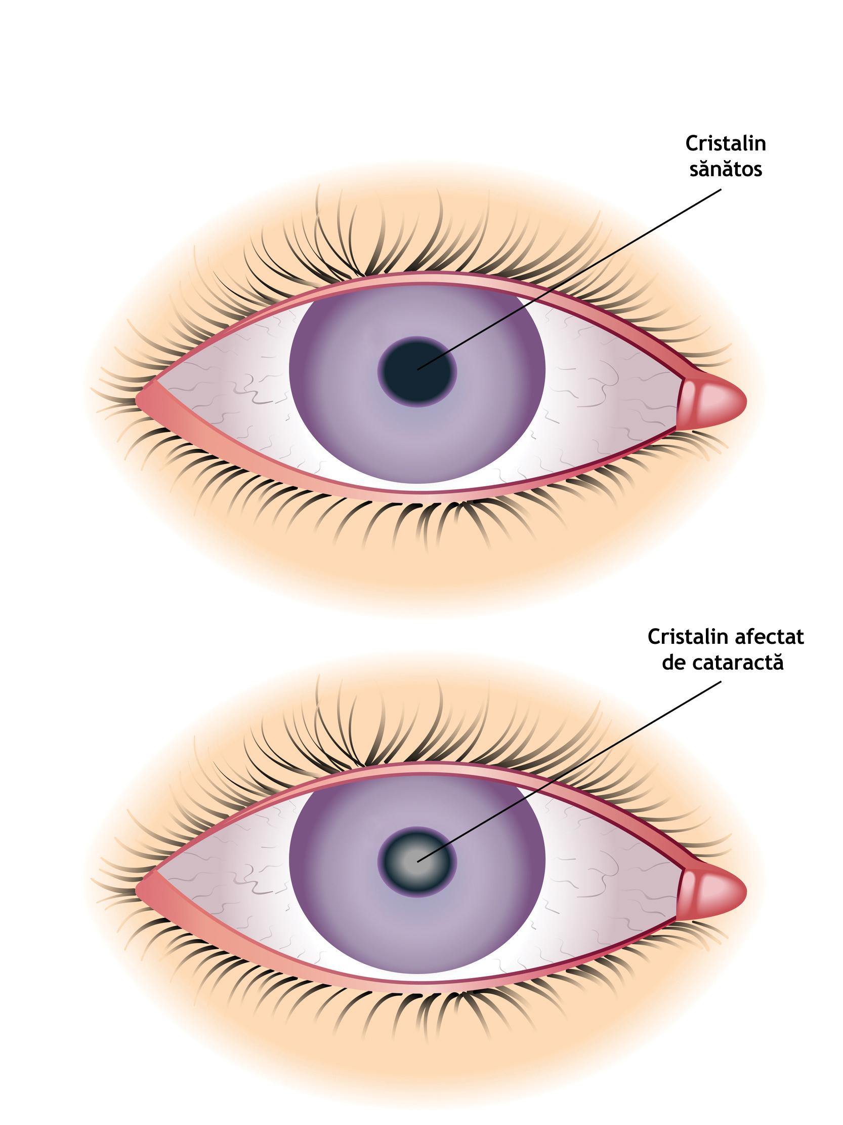 Ce trebuie de facut dupa operatie de cataracta?