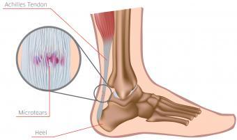 picioarele plate și vederea excesul de greutate și de vedere