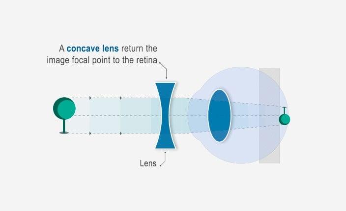 termeni oftalmici chirurgie cu miopie mare
