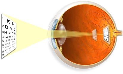 teste pentru acuitatea vizuală ce înseamnă viziune minus 0 5