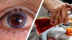 Restaurarea vederii cu remedii populare. Ce trebuie să faceți atunci când capilarul de spargere?
