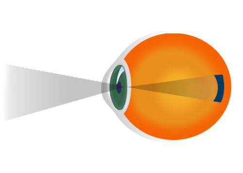 acuitatea vizuală 10 recuperarea vederii 0 4