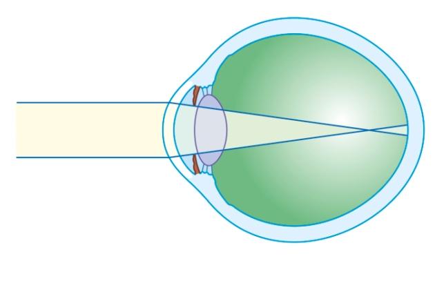 miopia progresează la adulți diagrama viziunii pentru adulți