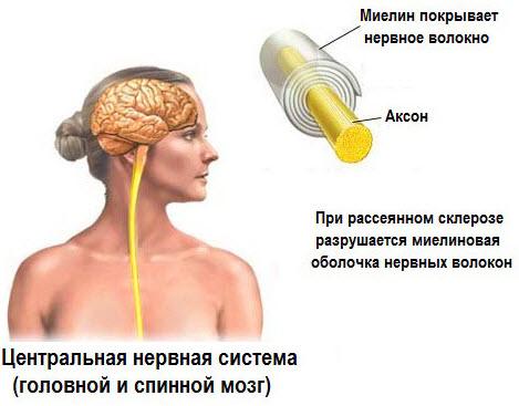 deficiență vizuală în scleroza multiplă