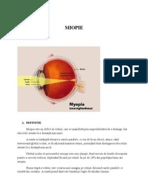 miopie degenerativă scăderea vederii la un ochi