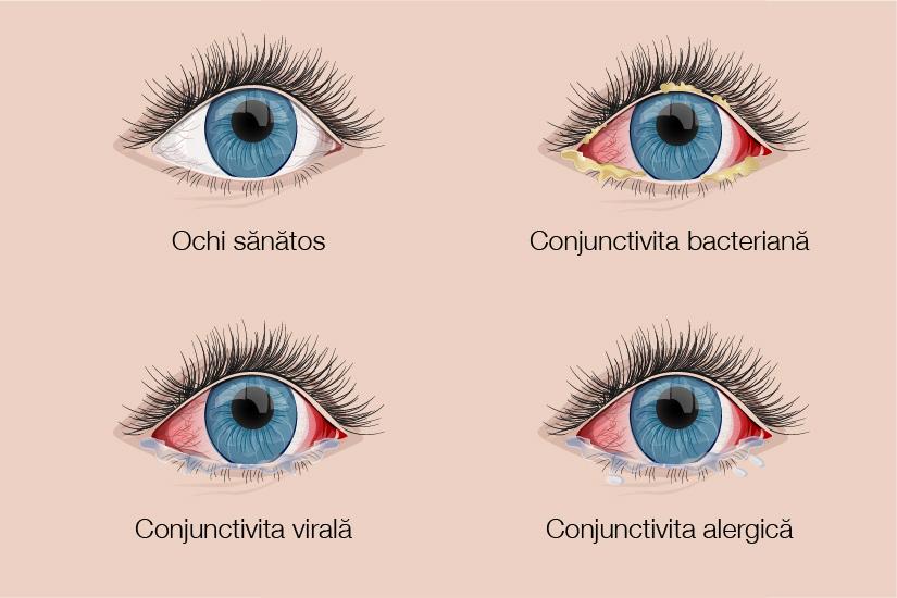 afectarea vederii la nivelul corneei viziune megan fox