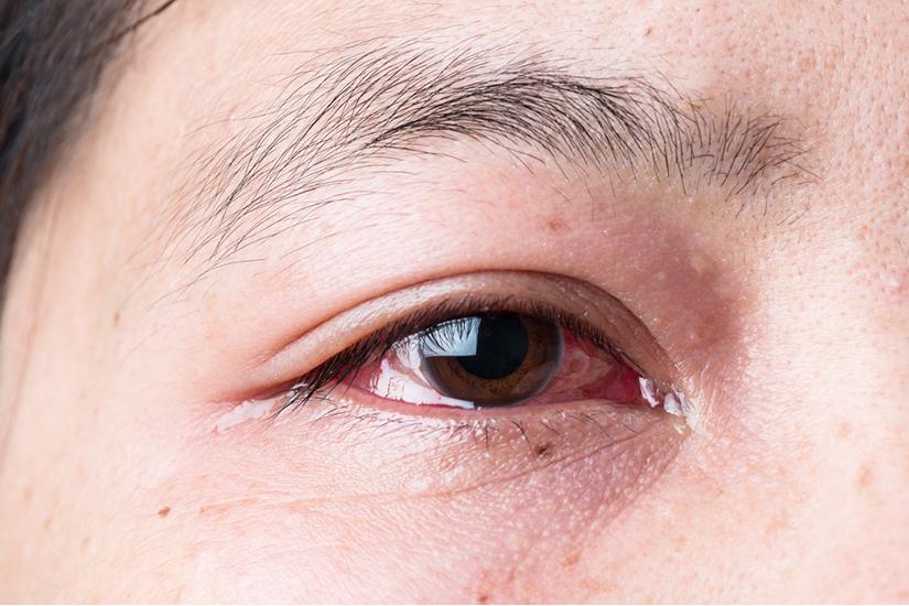 afectarea vederii la nivelul corneei investigator cu deficiențe de vedere