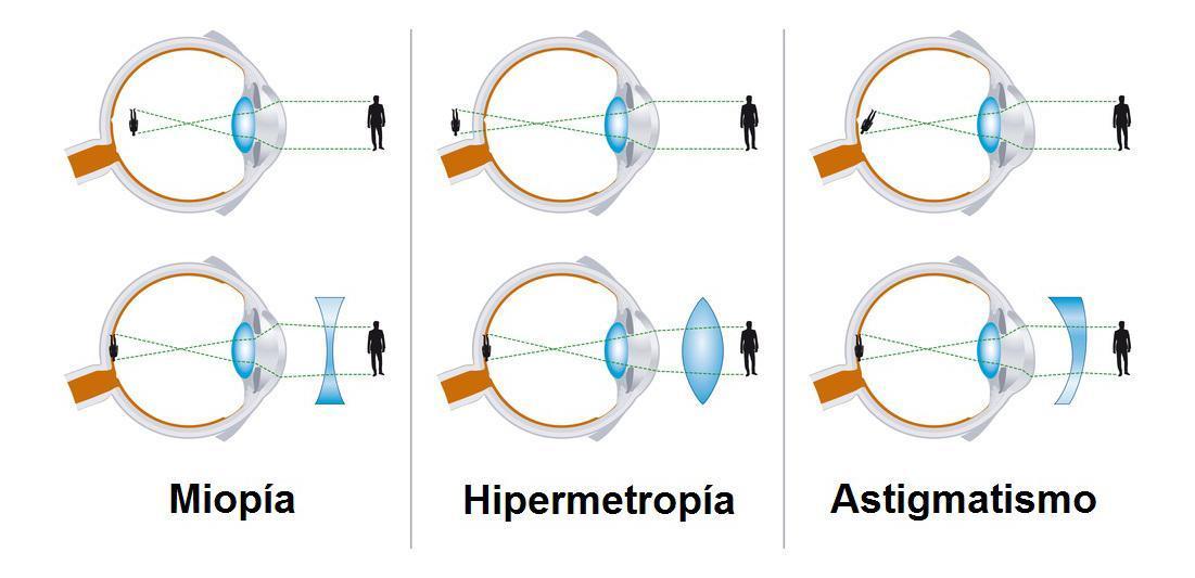 trăsături ale miopiei viziunii viziune 10 la sută într-un singur ochi