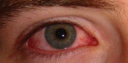 ar trebui să li se verifice ochii tabel de testare a ochilor astigmatism