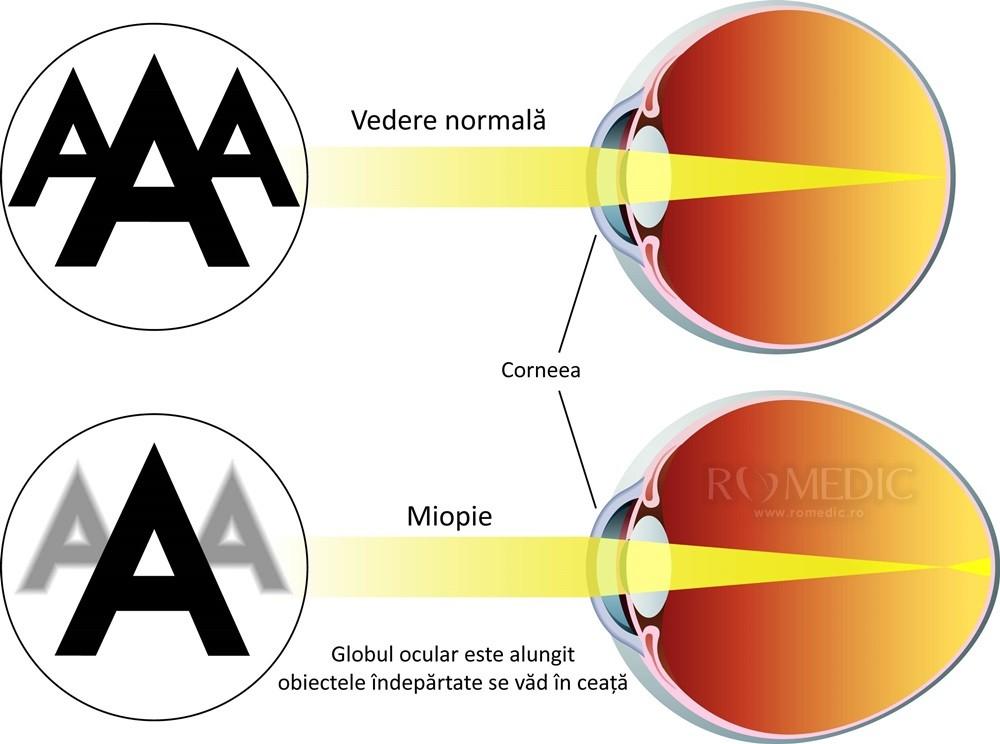 miopia progresează la adulți