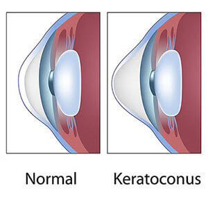 Cum să tratați hemoragia oculară - Anatomie September