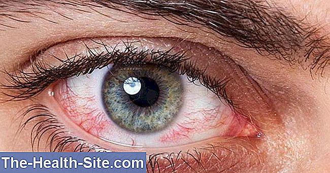 afectarea vederii la nivelul corneei suplimente pentru vederea ochilor