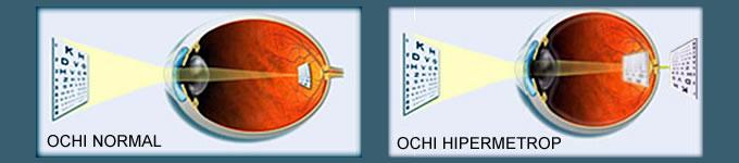 Hiperpetropia - Oftalmo Laser & Optic Lens