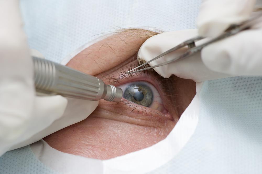 chirurgia vederii artificiale