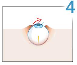 consecințele corectării laser a vederii