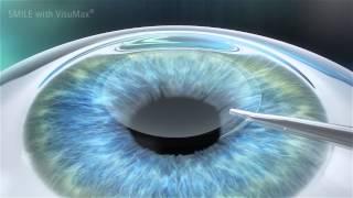 Tarife - Clinica Oculus