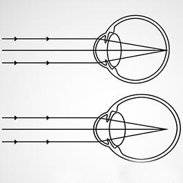 viziunea 1 5 este câte linii